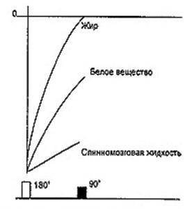 Получение МРТ изображения 2