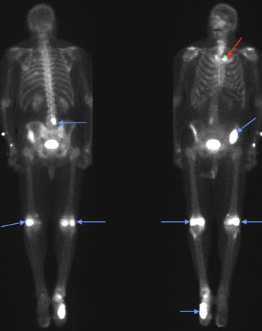 Анальгетики при раке легких