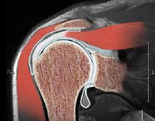 ... симптомы artritu.net стопы: - Артрит