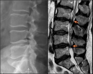 Боль в спине справа внизу лечение