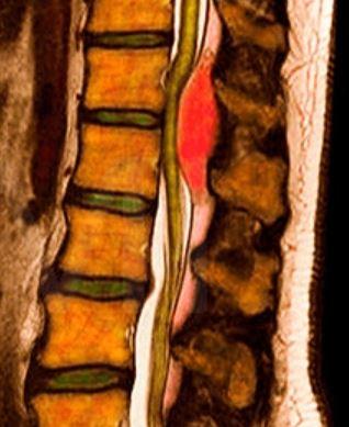 эпидуральный абсцесс в цвете
